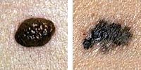 Photo comparing normal and melanoma moles showing border irregularity